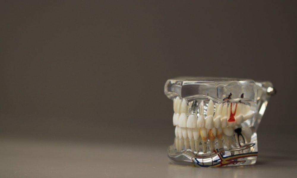 Zła dieta żywienia się to większe deficyty w jamie ustnej natomiast dodatkowo ich brak